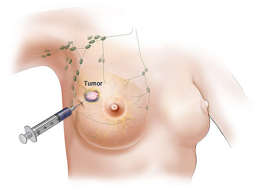 Breast Cancer Reason and Ribbon Tattoos