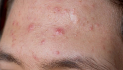 How to Get Rid of Pimples Advice