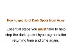 Dark Spots from Acne - How to get rid of them AND Prevent Recurrence.