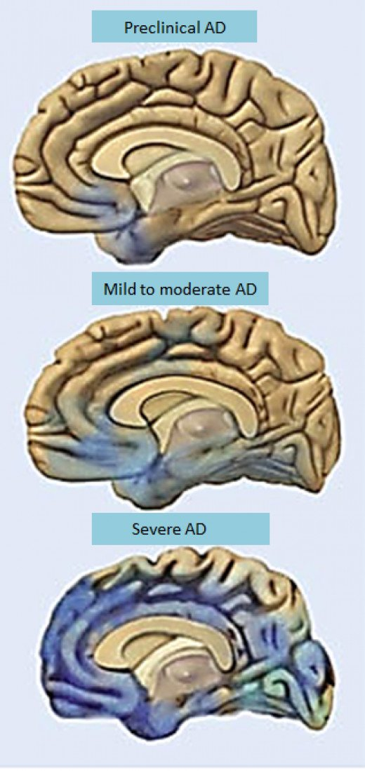 A decline in olfactory function may be an early warning sign of the onset of Alzheimer's disease