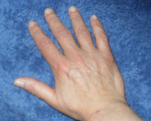 Now my hands are normal in the morning.  Before self-treatment my fingers were swollen to twice their normal size.