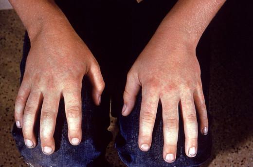 Fifth Disease Erythema Infectiosum