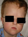 Apert Syndrome - Pictures, Life Expectancy, Symptoms, Treatment, Causes