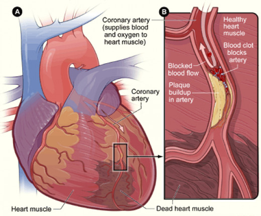 Heart Attack - Diagram of What Happens in a Myocardial Infarction