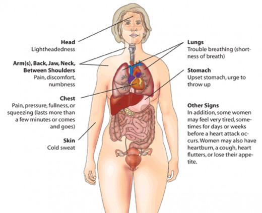 Heart attack warning signs-women