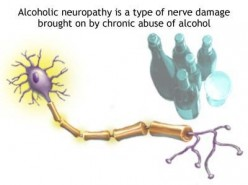 Diagnosing Alcoholic Neuropathy