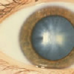 Photo of an eye with a cortical cataract. Source: National Eye Institute