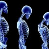 Osteoporosis: Dealing With Thinning Bones