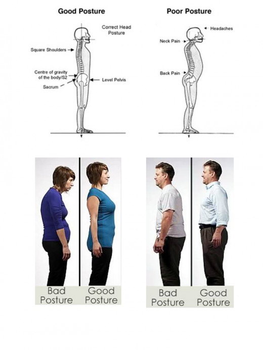 visual silhouettes of poor and good posture examples