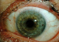 Keratoplasty - Definition, Types, Complications, Procedure, Pictures