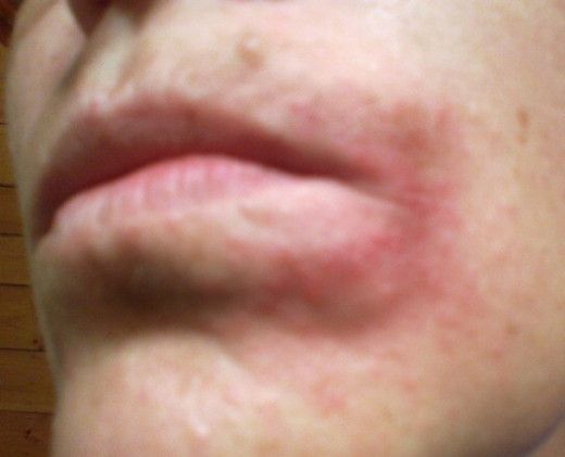 Rash Around Eyes And Mouth 71