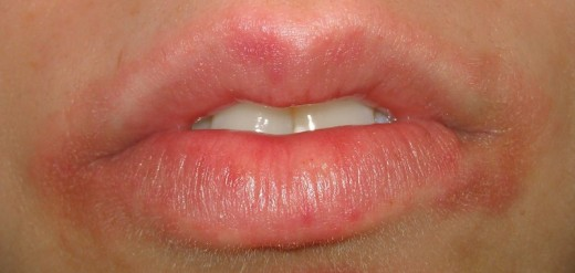 A rash around the mouth.