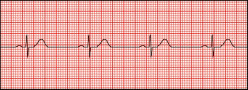 Sinus Bradycardia - Symptoms, Causes, Treatment