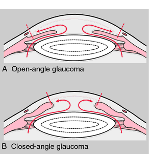 Closed angle glaucoma can result in total blindness in a matter of HOURS. Fortunately, most glaucoma are open angle which is very slow.