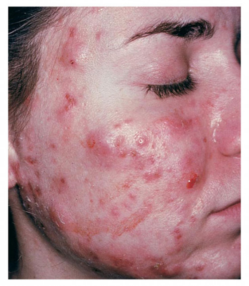 Cystic acne treatments are available.