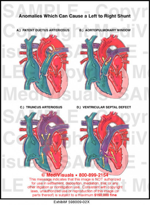 A pulmonic ystolic murmur may be heard. The murmur and the thrill are produced by increased blood flow through the pulmonary valve.