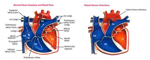 Embryologically, the ductus arteriosus is the persistent left sixth aortic arch. In the fetus, it allows the egress of blood pumped from the right ventricle into the pulmonary trunk to the descending aorta bypassing the lungs which are non-functional
