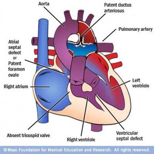 In cases with large pulmonary blood flow, the left atrium and left ventricle will be dilated and infants present with congestive heart failure.