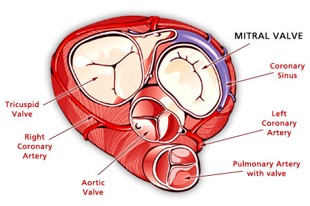 In Asia and Africa especially, rheumatic fever is the commonest cause of chronic valvular heart disease. The heart valves are inflamed in the rheumatic process.
