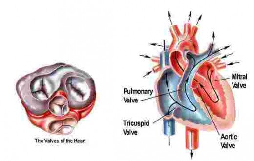 Stenosis results from the involvement of the cusps, commisures and the chordate of the mitral valve apparatus. The cusps become thickened and fibrosed, the commissures fuse and the chordate are thickened.
