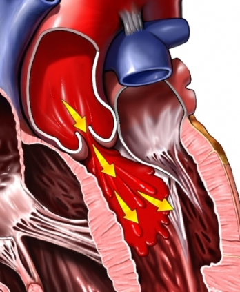 In subaortic stenosis, also varying degrees of AR may be present. In ventricular septal defect, the aortic cusps may prolapsed into the defect giving rise to AR.