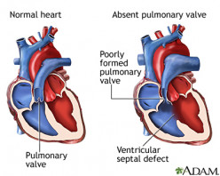 Acquired Lesions Of The Pulmonary Valve