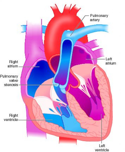 Management largely depends on the severity and etiology of pulmonary valve disease. Pulmonary valve replacement may have to be considered under the following indications