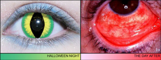 Decorative contact lenses can also lead to eye infections and inflamation