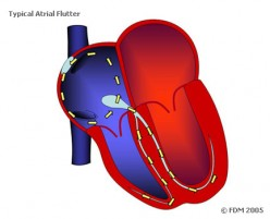 Clinical Significance And Presentation Of Atrial Flutter And Atrial