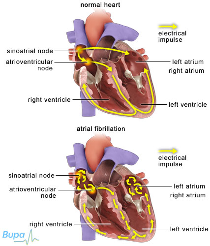 Diseases affecting the myocardium: Myocardial infarction, chronic coronary artery disease and myocarditis