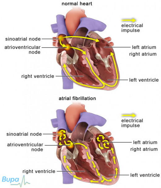 Diseases affecting the myocardium: Myocardial infarction, chronic coronary artery disease and myocarditis