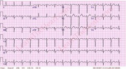 Clinical Manifestations, Diagnosis And Prognosis Of Heart Block