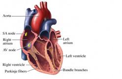 Clinical Management Of Heart Block