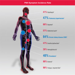Clinical Complications Of Systemic Hypertension