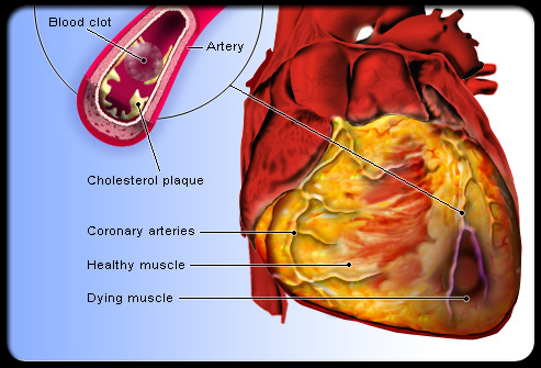 Congestive or dilated cardiomyopathy: This condition is characterized by cardiomegaly due to dilatation and congestive heart failure.