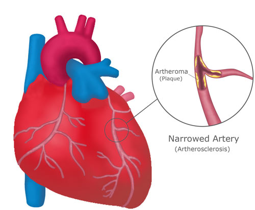 The right ventricular form which is more common presents with right-sided heart failure, gross enlargement of the right atrium, cardiomegaly and the disease follows a chronic course lasting for several years.