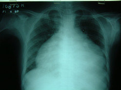 Clinical Manifestations Of Pericarditis And Pericardial Effusions, Its Complications And Treatments