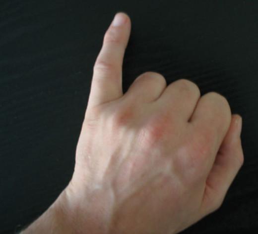 Swollen thumb joint injury treatment