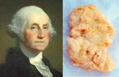 $8,000 Washington chicken nugget
