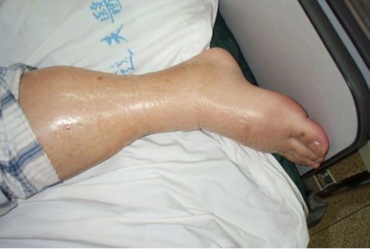 Leg with severe swelling (Edema)