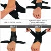 How Does Ankle Brace Helps in Treating Sprained Ankle?