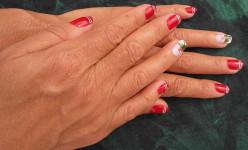 Ingrown Fingernail