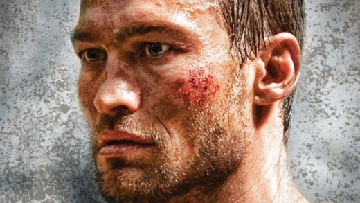 Andy Whitfield is yet another victim of this cancer of the lymphoid tissue