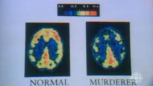 Criminal and Normal brain patterns