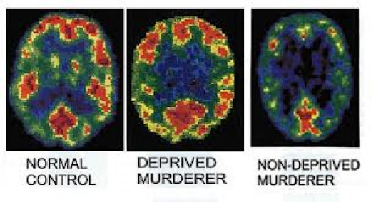 Brain patterns - criminology