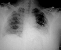 Although some authors state that a hematocrit value of at least 50% is necessary to differentiate a hemothorax from a bloody pleural effusion, most do not agree on any specific distinction.