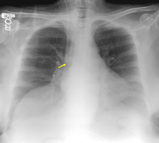 In cases of hemothorax unrelated to trauma, a careful investigation for the underlying source must be performed while treatment is provided.