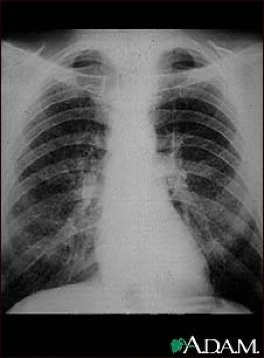 """The classic symptoms of active TB infection are a chronic cough with blood-tinged sputum, fever, night sweats, and weight loss (the latter giving rise to the formerly prevalent term """"consumption"""")."""