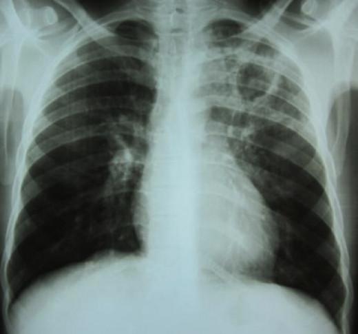 рубец на легком после пневмонии причины модели детского