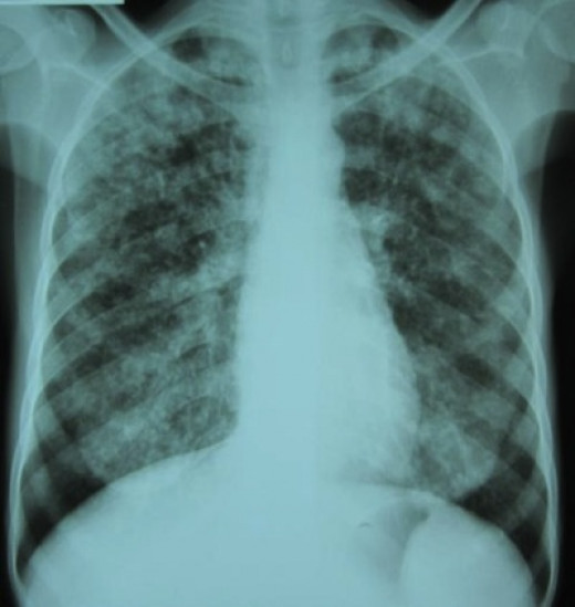 A definitive diagnosis of TB is made by identifying M. tuberculosis in a clinical sample (e.g. sputum, pus, or a tissue biopsy). However, the difficult culture process for this slow-growing organism can take two to six weeks for blood or sputum cultu